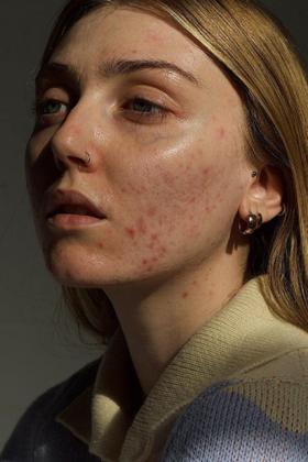 breakout-prone skin